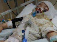 Aksaray'da üzerine çay dökülen çocuk yaşam mücadelesi veriyor